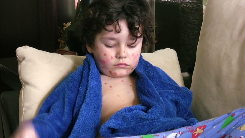 Sick little boy - HD stock footage clip