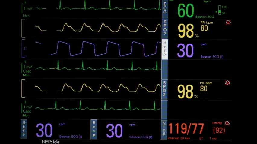 Time Lapse, Patient vital signs flash on computer screen monitor, display EKG, respiration, blood pressure readings. 1080p